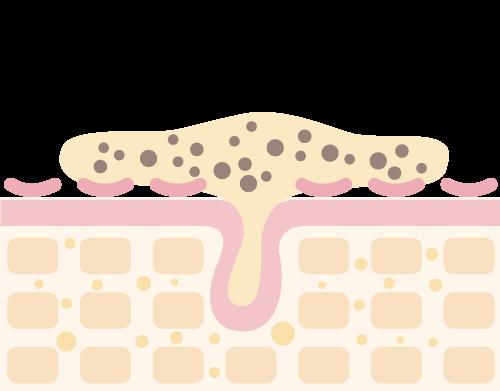 肌のイメージ